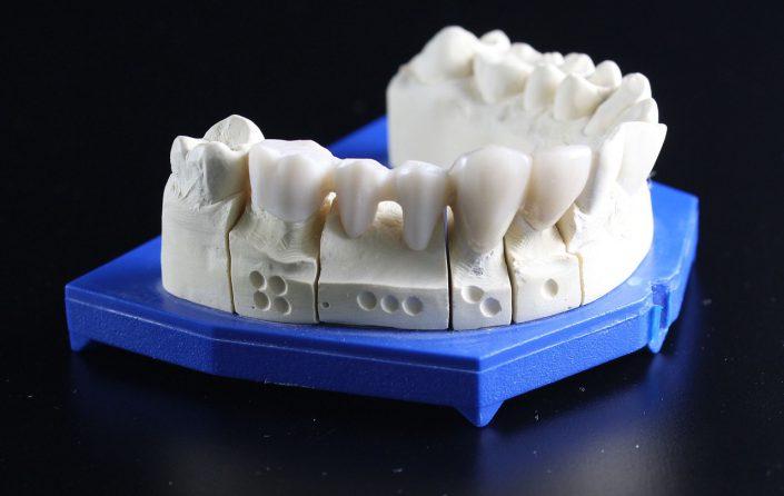 Modell Zähne Unterkiefer