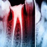 Röntgenbild Wurzelkanal